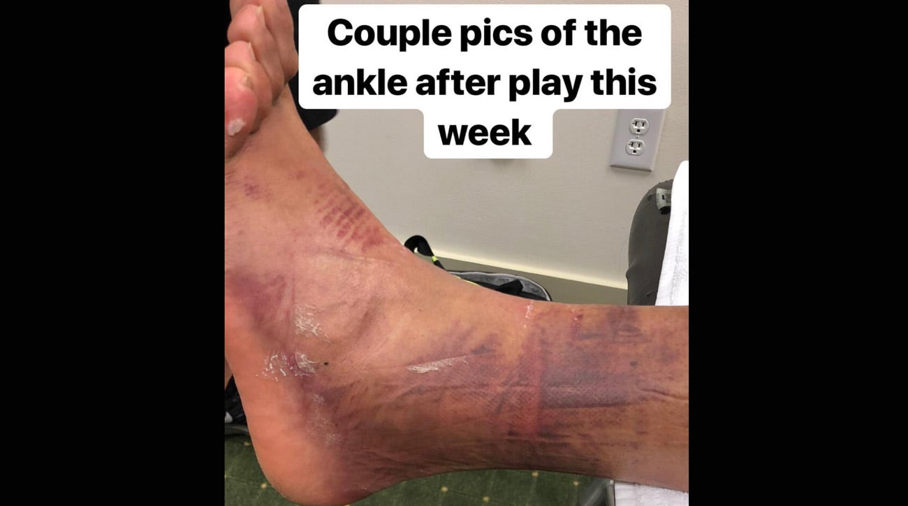 masters tony finau shares photo of his injured ankle
